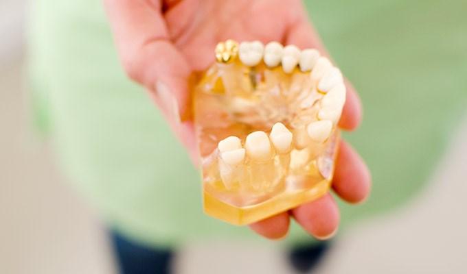 ont efter tandlagning